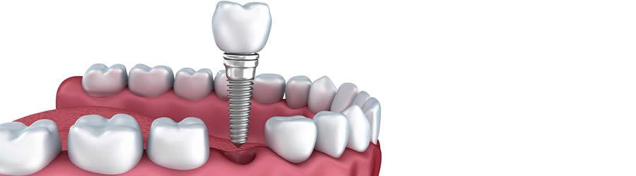 Tandprotese - Gebis, helproteser og delproteser